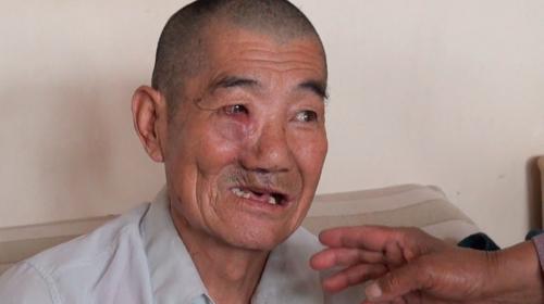 手術で顔の骨を切除したという男性。 レアアース湖の水の影響で発病したと思っている (2013年5月22日)