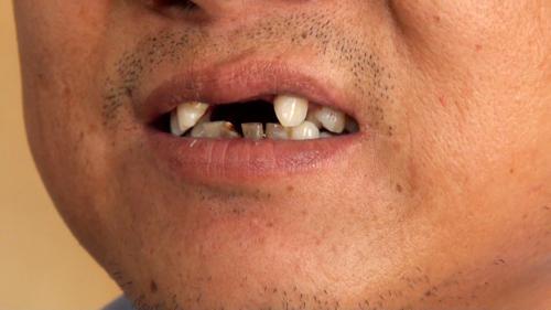 歯が抜けた訴える打拉亥村の男性 (2013年5月22日)